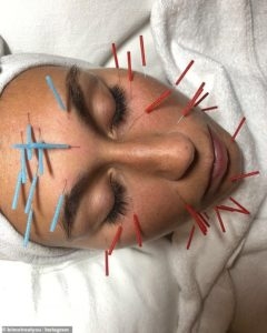 Facial Acupuncture, aesthetic dry needling for skin care.
